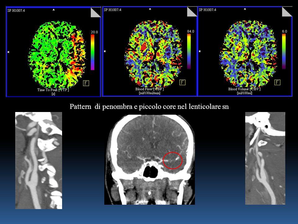 Pattern di penombra e piccolo core nel lenticolare sn