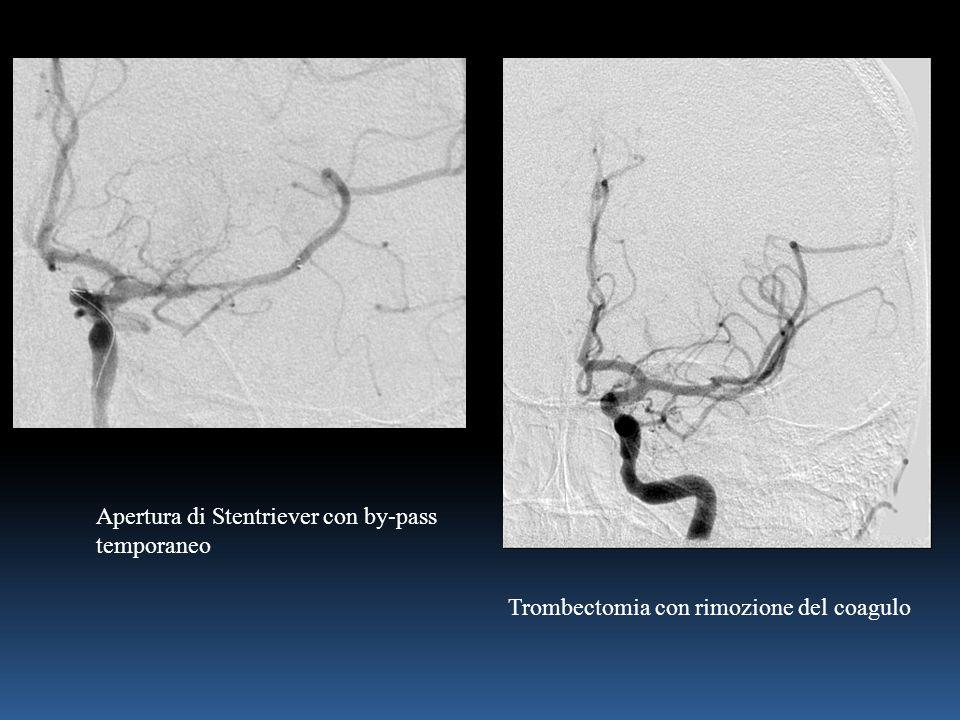 Apertura di Stentriever con by-pass temporaneo Trombectomia con rimozione del coagulo
