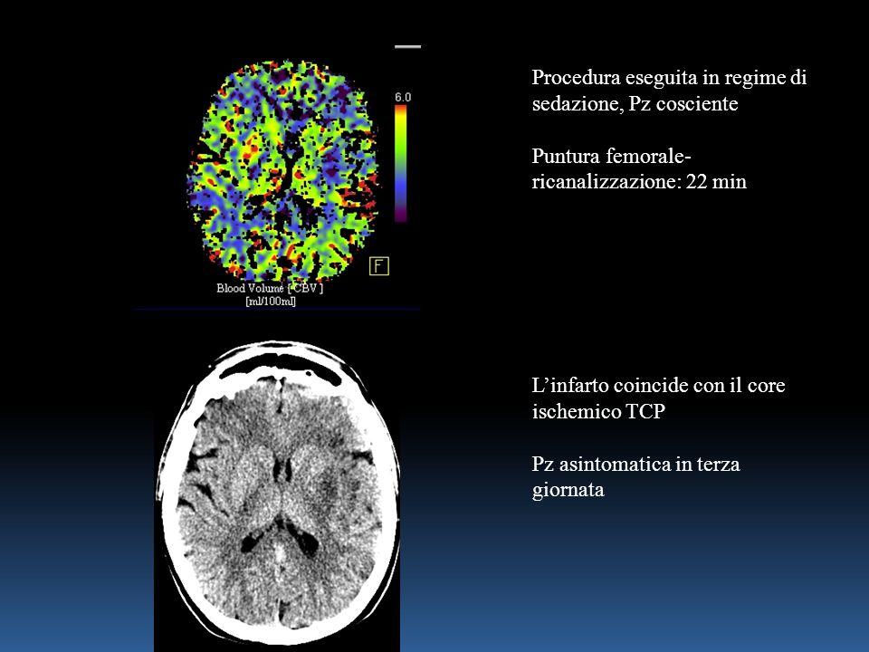Procedura eseguita in regime di sedazione, Pz cosciente Puntura femorale- ricanalizzazione: 22 min L'infarto coincide con il core ischemico TCP Pz asintomatica in terza giornata
