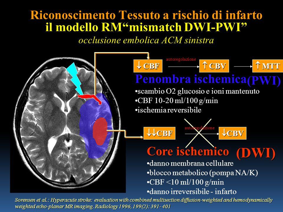 Riconoscimento Tessuto a rischio di infarto il modello RM mismatch DWI-PWI occlusione embolica ACM sinistra Penombra ischemica scambio O2 glucosio e ioni mantenuto CBF 10-20 ml/100 g/min ischemia reversibile Core ischemico danno membrana cellulare blocco metabolico (pompa NA/K) CBF <10 ml/100 g/min danno irreversibile - infarto  CBF  CBV autoregolazione  MTT  CBF  CBV autoregolazione Sorensen et al.: Hyperacute stroke: evaluation with combined multisection diffusion-weighted and hemodynamically weighted echo-planar MR imaging.