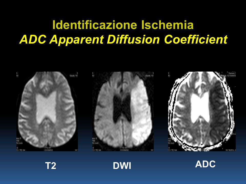 Identificazione Ischemia ADC Apparent Diffusion Coefficient T2DWI ADC