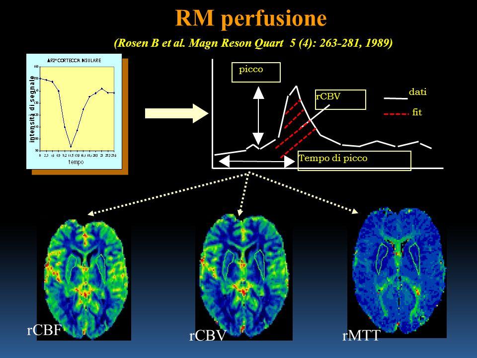 RM perfusione (Rosen B et al. Magn Reson Quart 5 (4): 263-281, 1989) rMTT rCBV rCBF Tempo di picco picco dati fit rCBV