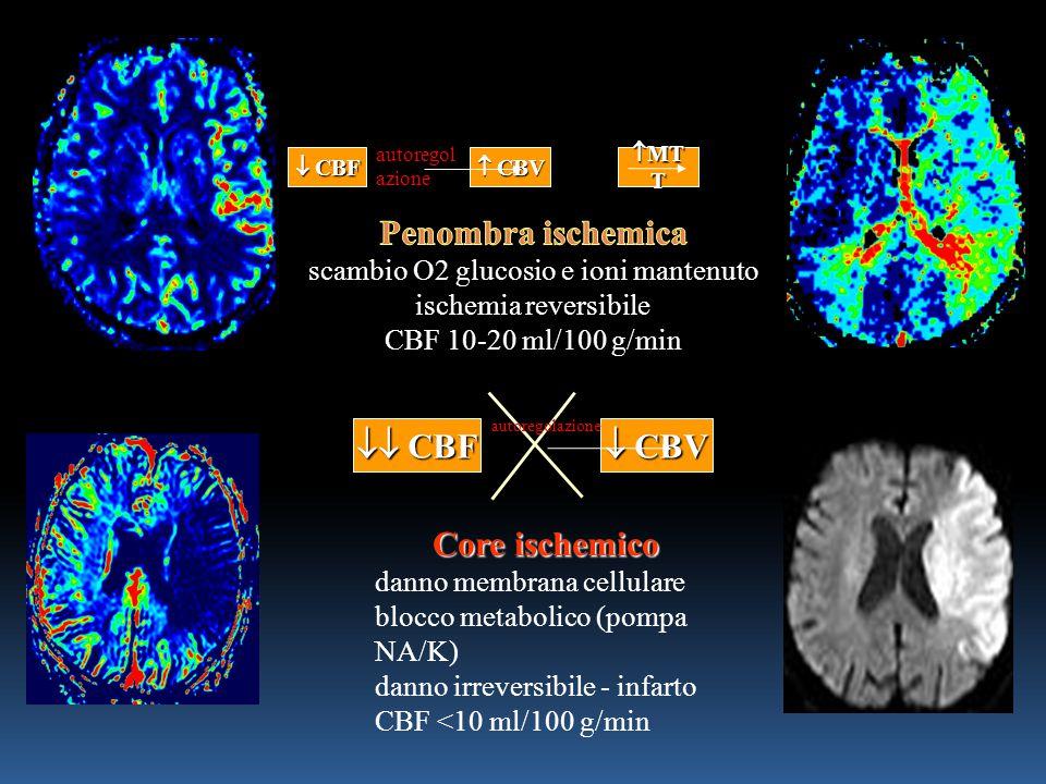 Core ischemico danno membrana cellulare blocco metabolico (pompa NA/K) danno irreversibile - infarto CBF <10 ml/100 g/min  CBF  CBV autoregolazione  CBF  CBV autoregol azione  MT T