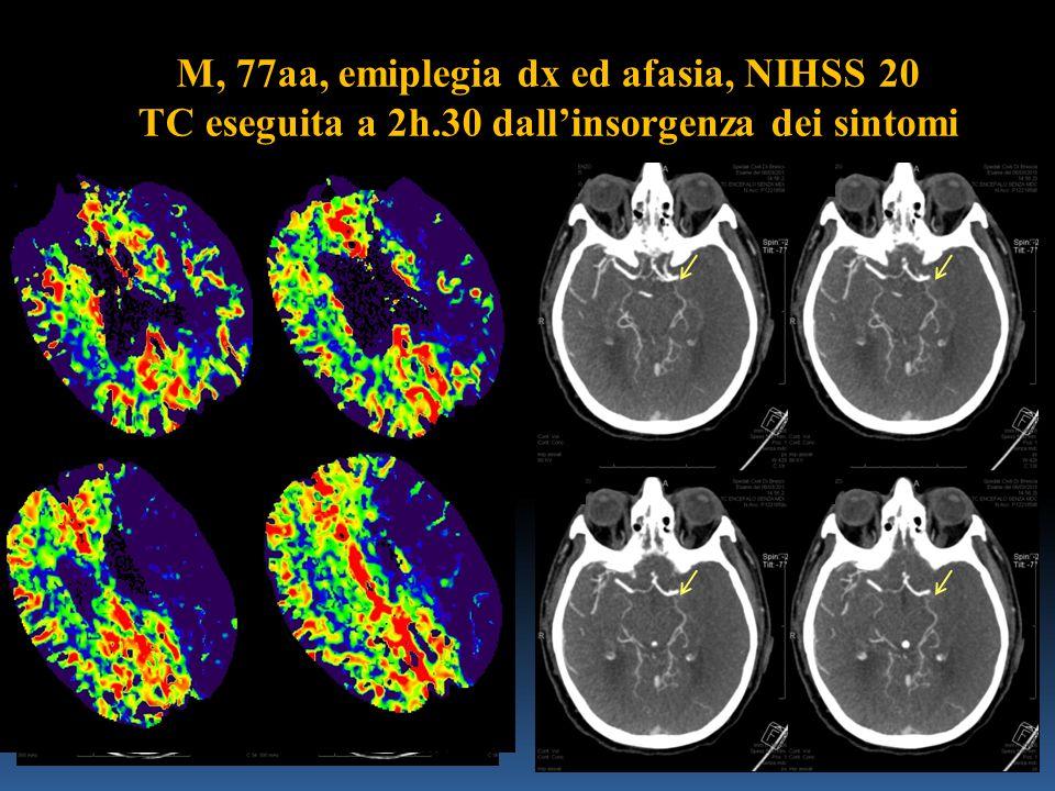 M, 77aa, emiplegia dx ed afasia, NIHSS 20 TC eseguita a 2h.30 dall'insorgenza dei sintomi