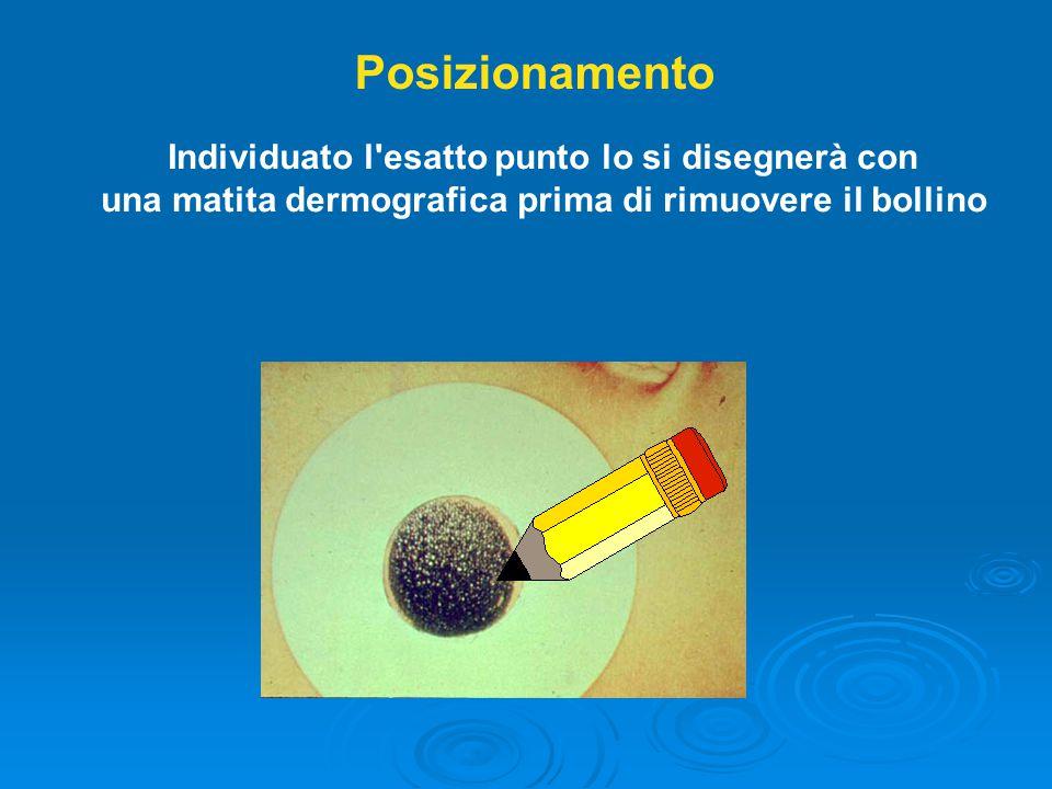 Posizionamento Individuato l esatto punto lo si disegnerà con una matita dermografica prima di rimuovere il bollino