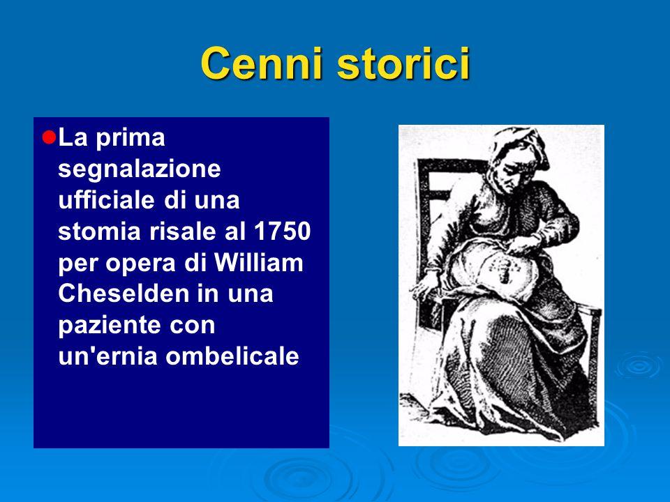 Cenni storici l l La prima segnalazione ufficiale di una stomia risale al 1750 per opera di William Cheselden in una paziente con un ernia ombelicale