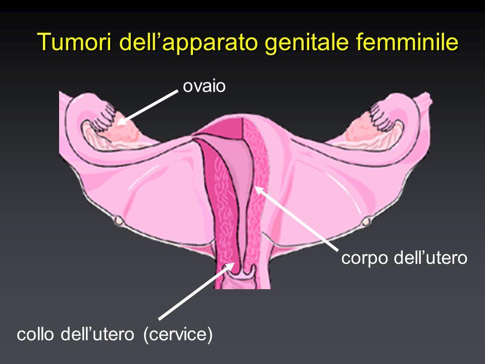 Tumori dell'utero Tumori del collo dell'utero (cervice)Tumori del collo dell'utero (cervice) Benigni: polipo cervicaleBenigni: polipo cervicale Maligni: carcinoma del collo dell'uteroMaligni: carcinoma del collo dell'utero Tumori del corpo dell'uteroTumori del corpo dell'utero Benigni: miomi, polipi, iperplasia dell'endometrioBenigni: miomi, polipi, iperplasia dell'endometrio Maligni: carcinoma dell'endometrioMaligni: carcinoma dell'endometrio Tumori del collo dell'utero (cervice)Tumori del collo dell'utero (cervice) Benigni: polipo cervicaleBenigni: polipo cervicale Maligni: carcinoma del collo dell'uteroMaligni: carcinoma del collo dell'utero Tumori del corpo dell'uteroTumori del corpo dell'utero Benigni: miomi, polipi, iperplasia dell'endometrioBenigni: miomi, polipi, iperplasia dell'endometrio Maligni: carcinoma dell'endometrioMaligni: carcinoma dell'endometrio