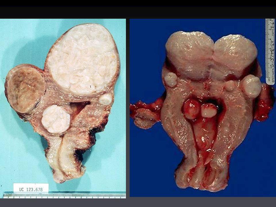 Sintomi dei miomi Miomi voluminosi  senso di pesoMiomi voluminosi  senso di peso Fenomeni degenerativi (necrosi, colliquazione)  doloreFenomeni degenerativi (necrosi, colliquazione)  dolore Miomi sottomucosi  sterilitàMiomi sottomucosi  sterilità Miomi sottomucosi (iperplasia endometriale associata)  meno- metrorragiaMiomi sottomucosi (iperplasia endometriale associata)  meno- metrorragia Miomi voluminosi  senso di pesoMiomi voluminosi  senso di peso Fenomeni degenerativi (necrosi, colliquazione)  doloreFenomeni degenerativi (necrosi, colliquazione)  dolore Miomi sottomucosi  sterilitàMiomi sottomucosi  sterilità Miomi sottomucosi (iperplasia endometriale associata)  meno- metrorragiaMiomi sottomucosi (iperplasia endometriale associata)  meno- metrorragia