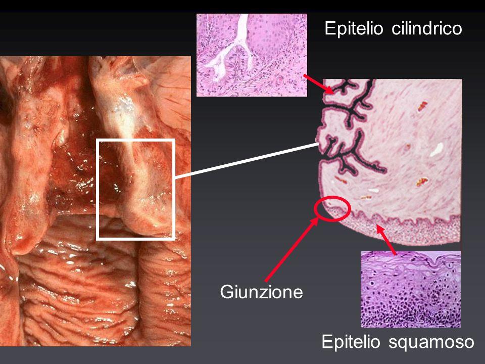 Tumori maligni del collo dell'utero Carcinoma squamoso e precursori (giunzione squamo-colonnare) Adenocarcinoma (endocervice) (raro) Tumori mesenchimali (rarissimi) ( es: rabdomiosarcoma botrioide) Carcinoma squamoso e precursori (giunzione squamo-colonnare) Adenocarcinoma (endocervice) (raro) Tumori mesenchimali (rarissimi) ( es: rabdomiosarcoma botrioide)
