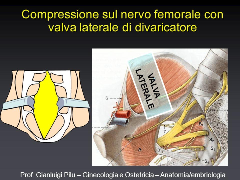 Prof. Gianluigi Pilu – Ginecologia e Ostetricia – Anatomia/embriologia Compressione sul nervo femorale con valva laterale di divaricatore VALVA LATERA