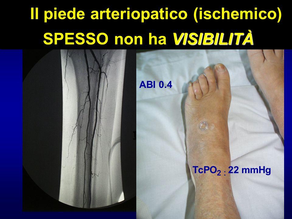 Il piede arteriopatico (ischemico) VISIBILITÀ SPESSO non ha VISIBILITÀ ABI 0.4 TcPO 2 : 22 mmHg