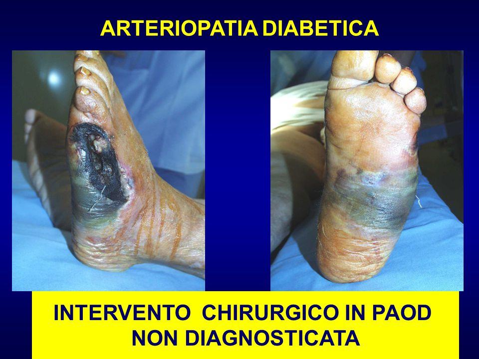 INTERVENTO CHIRURGICO IN PAOD NON DIAGNOSTICATA ARTERIOPATIA DIABETICA