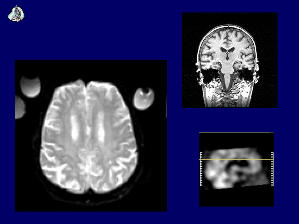 M. di Alzheimer