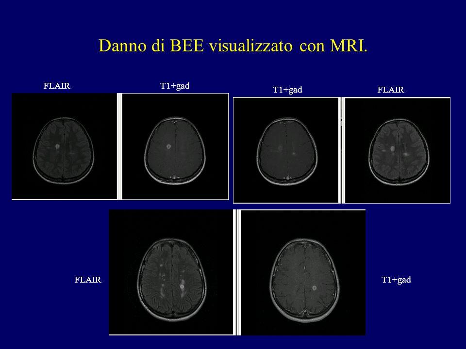 Danno di BEE visualizzato con MRI. T1+gadFLAIR T1+gadFLAIR T1+gad