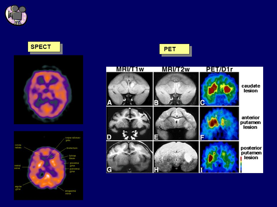 Tecniche di indagine funzionale SPECT PET