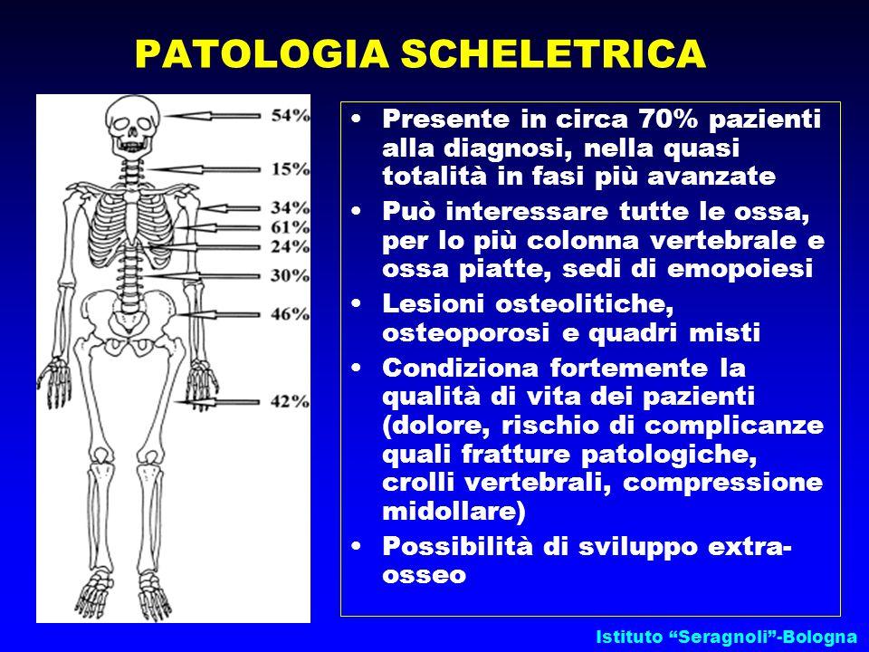 Istituto Seragnoli -Bologna Presente in circa 70% pazienti alla diagnosi, nella quasi totalità in fasi più avanzate Può interessare tutte le ossa, per lo più colonna vertebrale e ossa piatte, sedi di emopoiesi Lesioni osteolitiche, osteoporosi e quadri misti Condiziona fortemente la qualità di vita dei pazienti (dolore, rischio di complicanze quali fratture patologiche, crolli vertebrali, compressione midollare) Possibilità di sviluppo extra- osseo PATOLOGIA SCHELETRICA