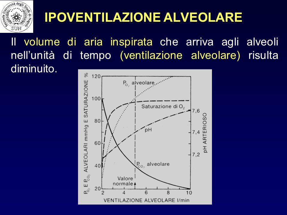 IPOVENTILAZIONE ALVEOLARE Il volume di aria inspirata che arriva agli alveoli nell'unità di tempo (ventilazione alveolare) risulta diminuito.