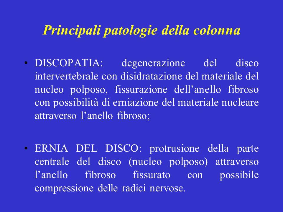 Principali patologie della colonna DISCOPATIA: degenerazione del disco intervertebrale con disidratazione del materiale del nucleo polposo, fissurazio