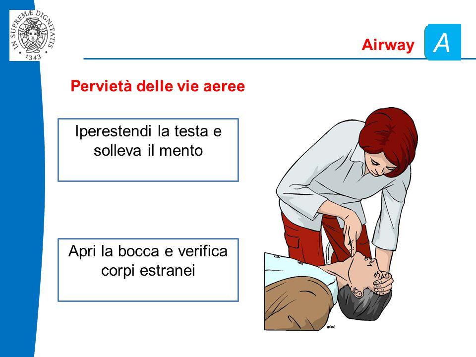 Pervietà delle vie aeree Airway A Iperestendi la testa e solleva il mento Apri la bocca e verifica corpi estranei