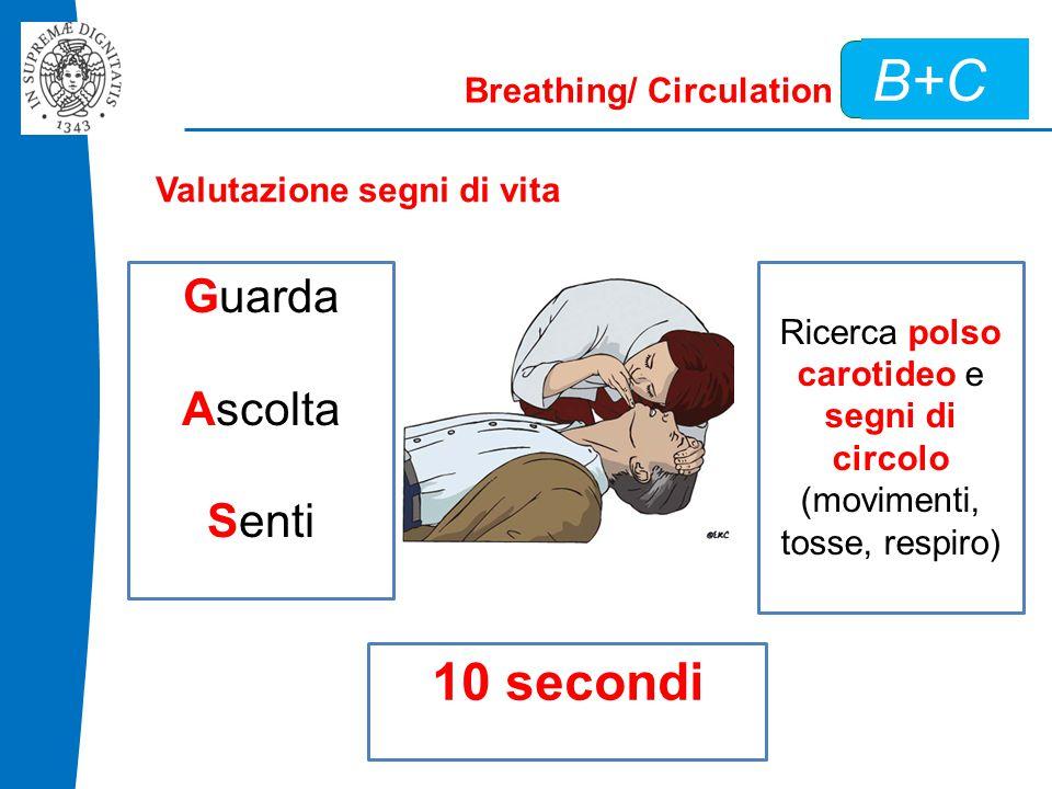 B+C Breathing/ Circulation Valutazione segni di vita Guarda Ascolta Senti Ricerca polso carotideo e segni di circolo (movimenti, tosse, respiro) 10 secondi