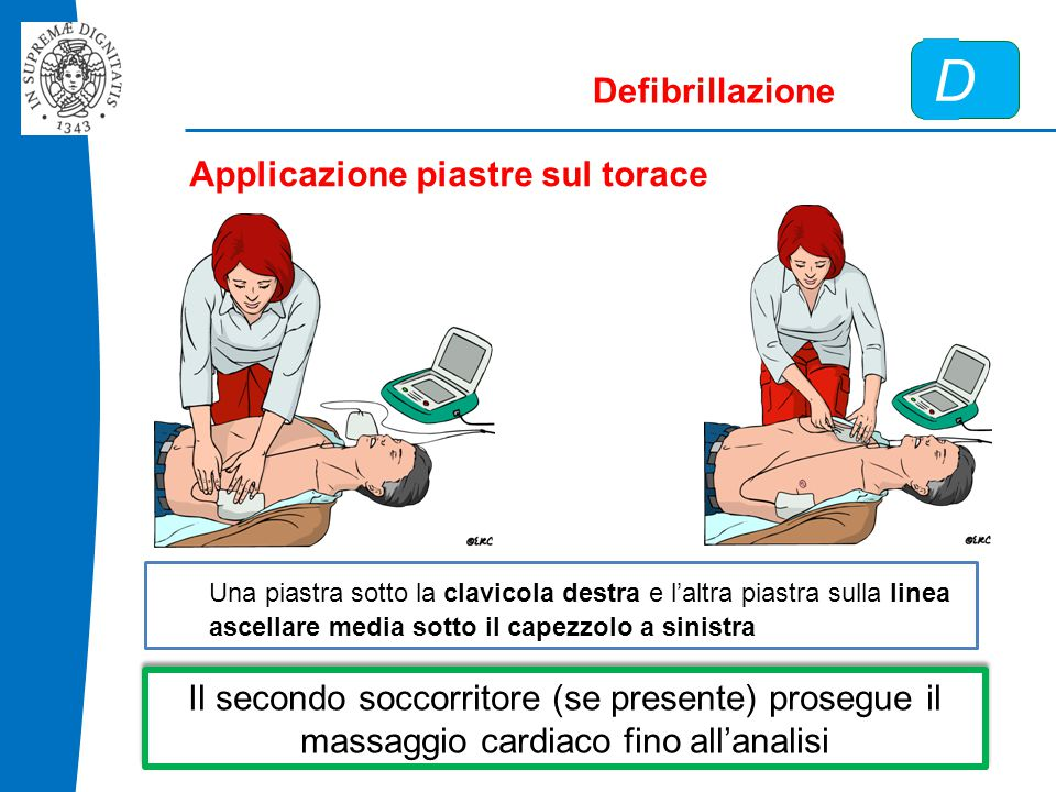 D Defibrillazione Applicazione piastre sul torace Una piastra sotto la clavicola destra e l'altra piastra sulla linea ascellare media sotto il capezzolo a sinistra Il secondo soccorritore (se presente) prosegue il massaggio cardiaco fino all'analisi