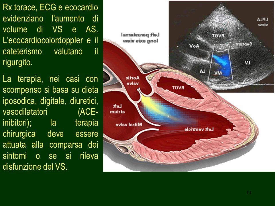 11 Rx torace, ECG e ecocardio evidenziano I aumento di volume di VS e AS.