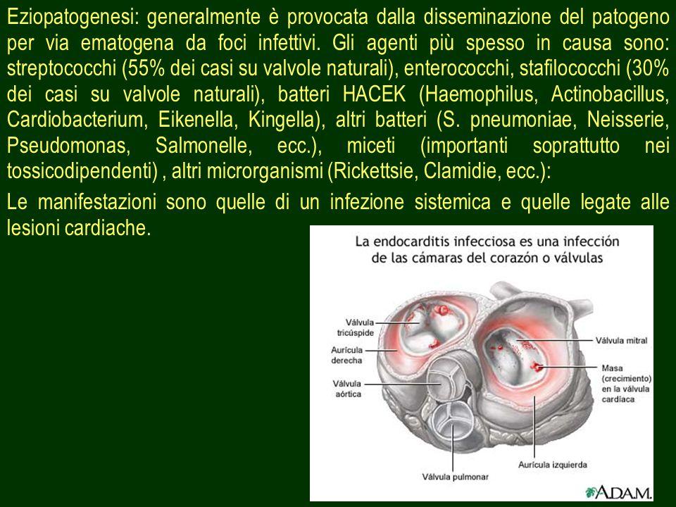 16 Eziopatogenesi: generalmente è provocata dalla disseminazione del patogeno per via ematogena da foci infettivi.