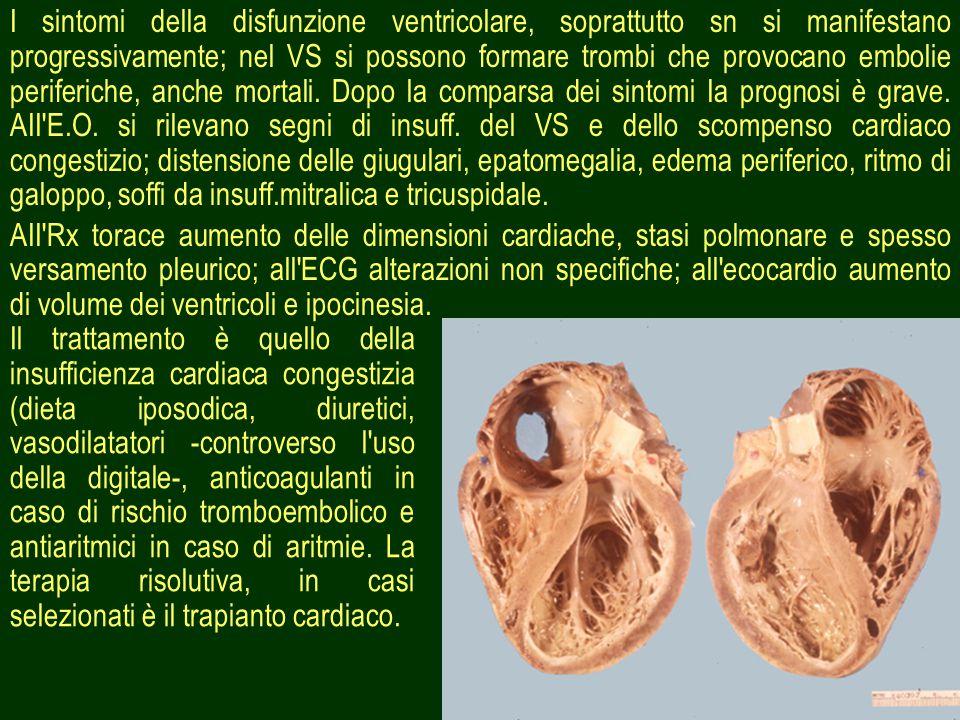 31 I sintomi della disfunzione ventricolare, soprattutto sn si manifestano progressivamente; nel VS si possono formare trombi che provocano embolie periferiche, anche mortali.