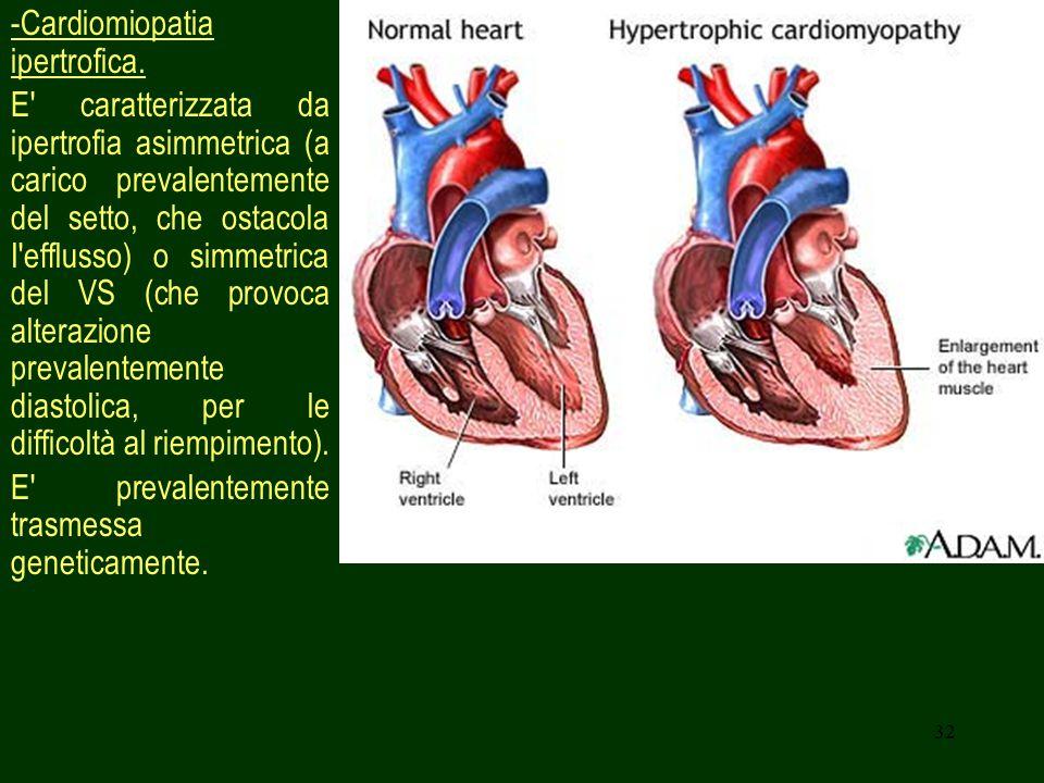 32 -Cardiomiopatia ipertrofica.