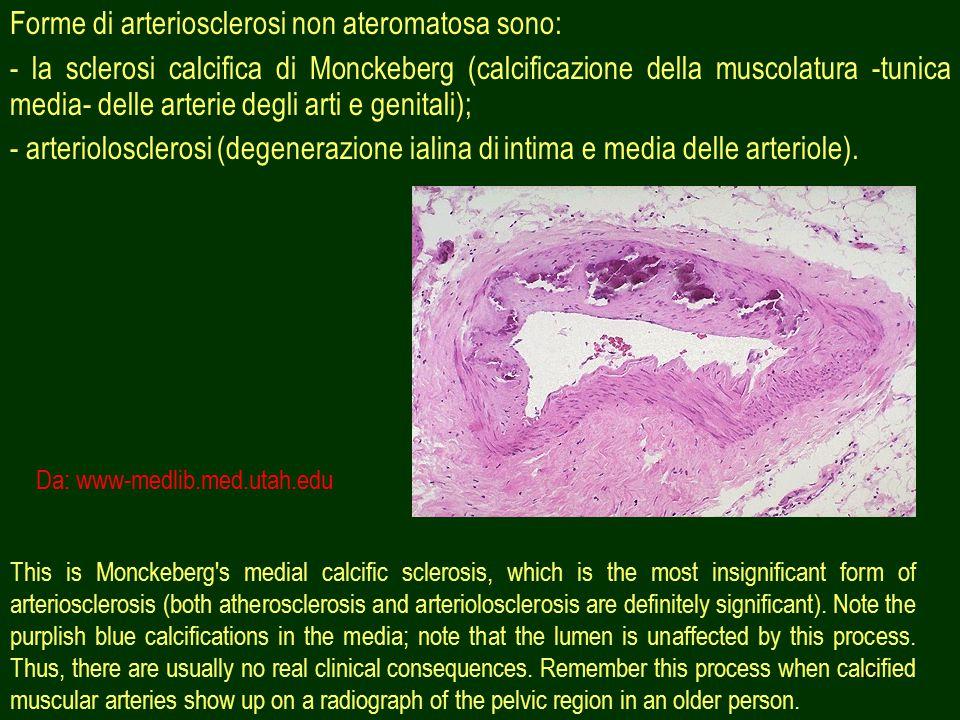 48 Forme di arteriosclerosi non ateromatosa sono: - la sclerosi calcifica di Monckeberg (calcificazione della muscolatura -tunica media- delle arterie degli arti e genitali); - arteriolosclerosi (degenerazione ialina di intima e media delle arteriole).