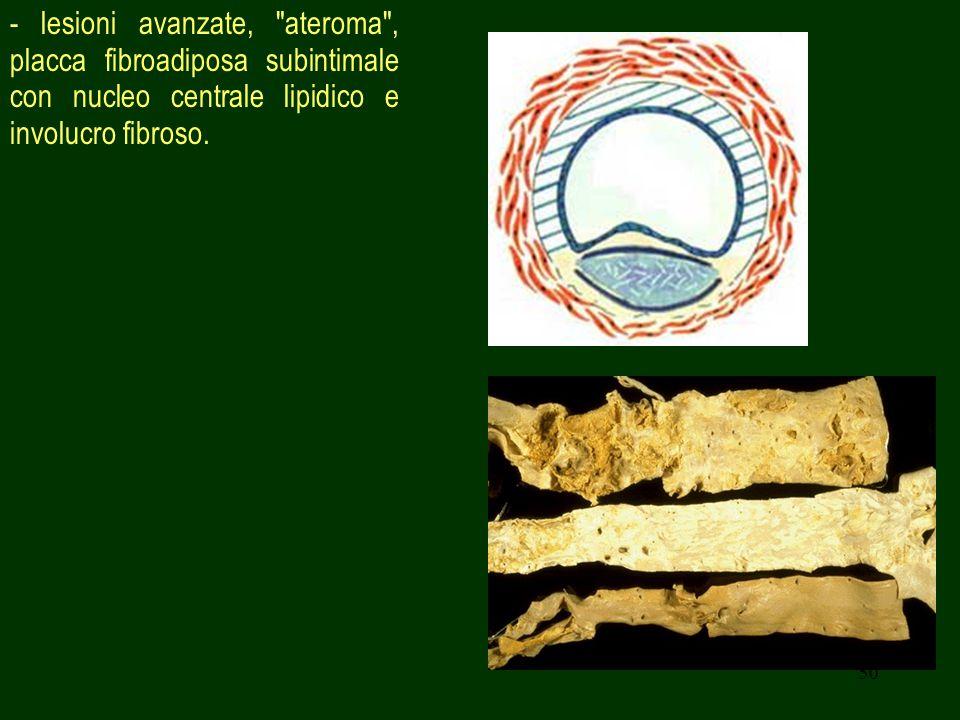 50 - lesioni avanzate, ateroma , placca fibroadiposa subintimale con nucleo centrale lipidico e involucro fibroso.