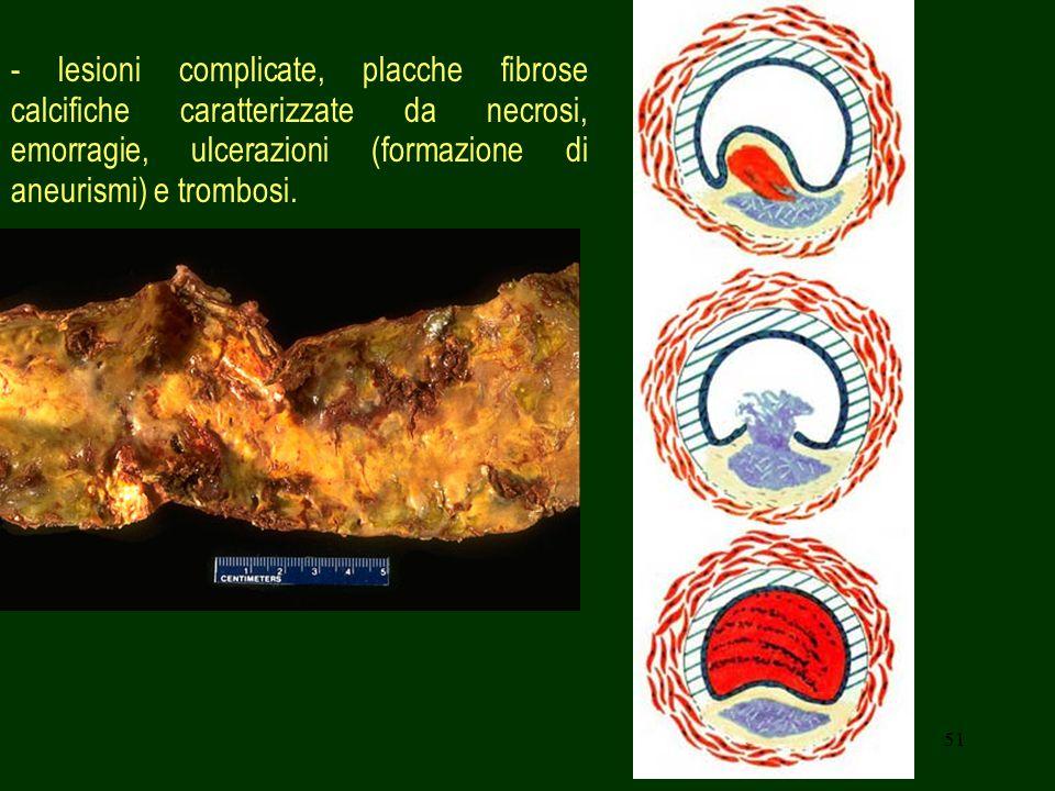 51 - lesioni complicate, placche fibrose calcifiche caratterizzate da necrosi, emorragie, ulcerazioni (formazione di aneurismi) e trombosi.