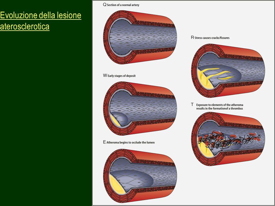 52 Evoluzione della lesione aterosclerotica