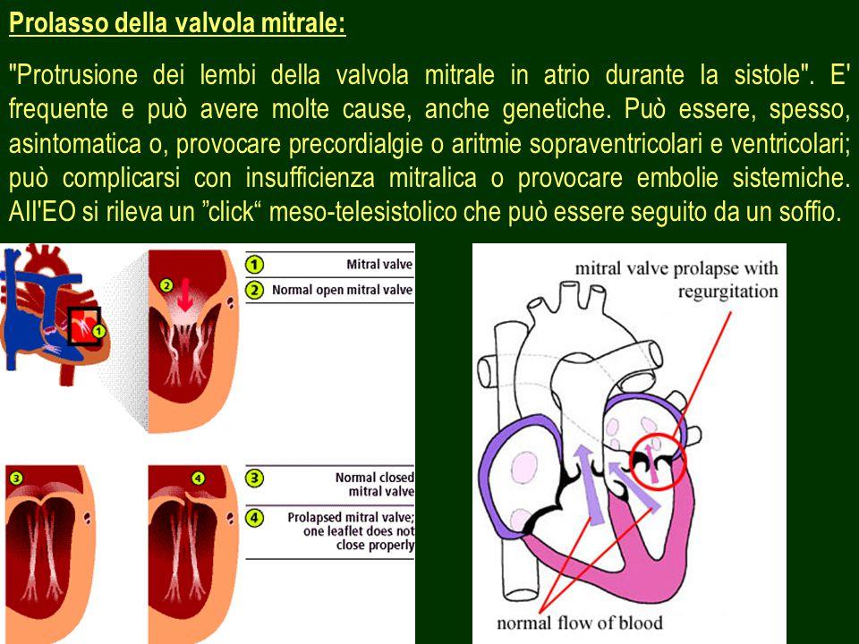 6 Prolasso della valvola mitrale: Protrusione dei lembi della valvola mitrale in atrio durante la sistole .