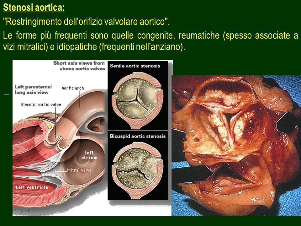 8 Stenosi aortica: Restringimento dell orifizio valvolare aortico .