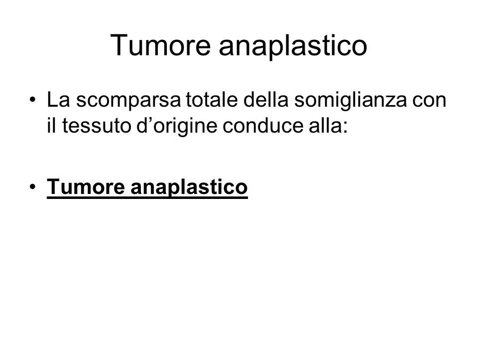 Tumore anaplastico La scomparsa totale della somiglianza con il tessuto d'origine conduce alla: Tumore anaplastico