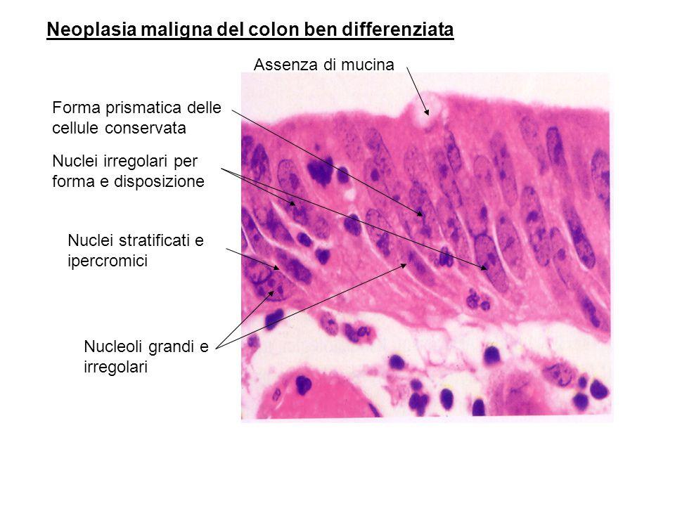 Neoplasia maligna del colon ben differenziata Forma prismatica delle cellule conservata Nuclei irregolari per forma e disposizione Assenza di mucina Nuclei stratificati e ipercromici Nucleoli grandi e irregolari