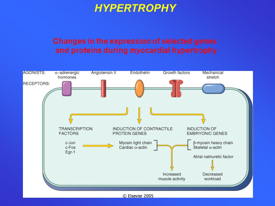 HYPERTROPHY Changes in the expression of selected genes and proteins during myocardial hypertrophy