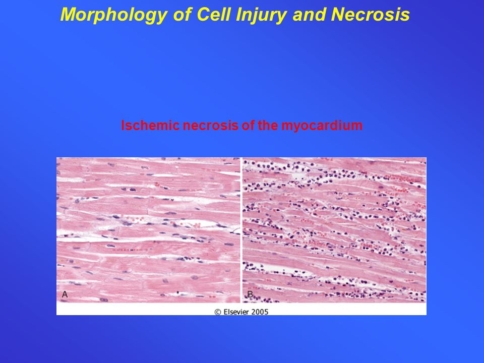 Morphology of Cell Injury and Necrosis Ischemic necrosis of the myocardium