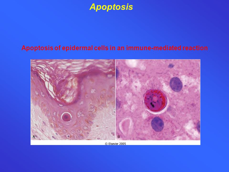 Apoptosis of epidermal cells in an immune-mediated reaction Apoptosis