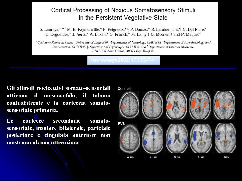 NeuroImage 2002; 17:732–741 Gli stimoli nocicettivi somato-sensoriali attivano il mesencefalo, il talamo controlaterale e la corteccia somato- sensori