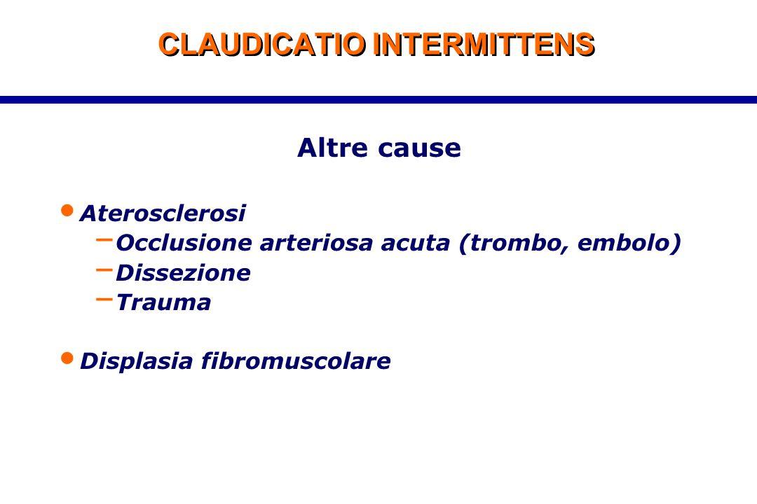 CLAUDICATIO INTERMITTENS Altre cause Aterosclerosi – Occlusione arteriosa acuta (trombo, embolo) – Dissezione – Trauma Displasia fibromuscolare