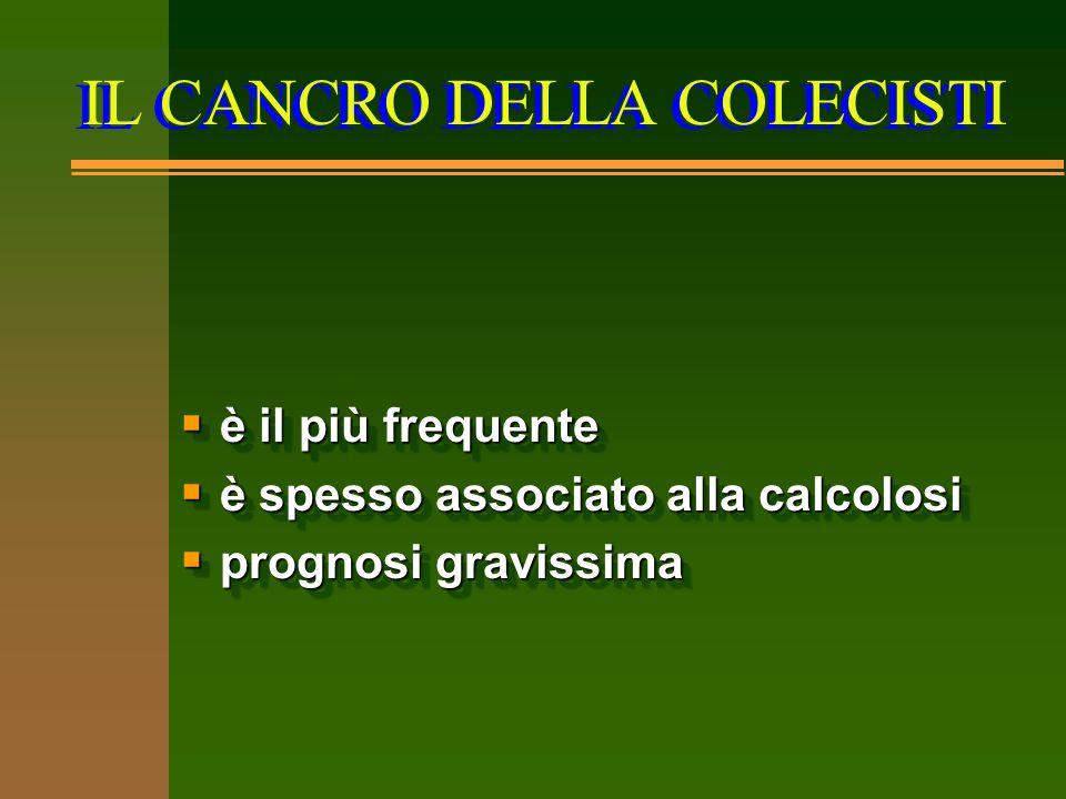 IL CANCRO DELLA COLECISTI  è il più frequente  è spesso associato alla calcolosi  prognosi gravissima  è il più frequente  è spesso associato all