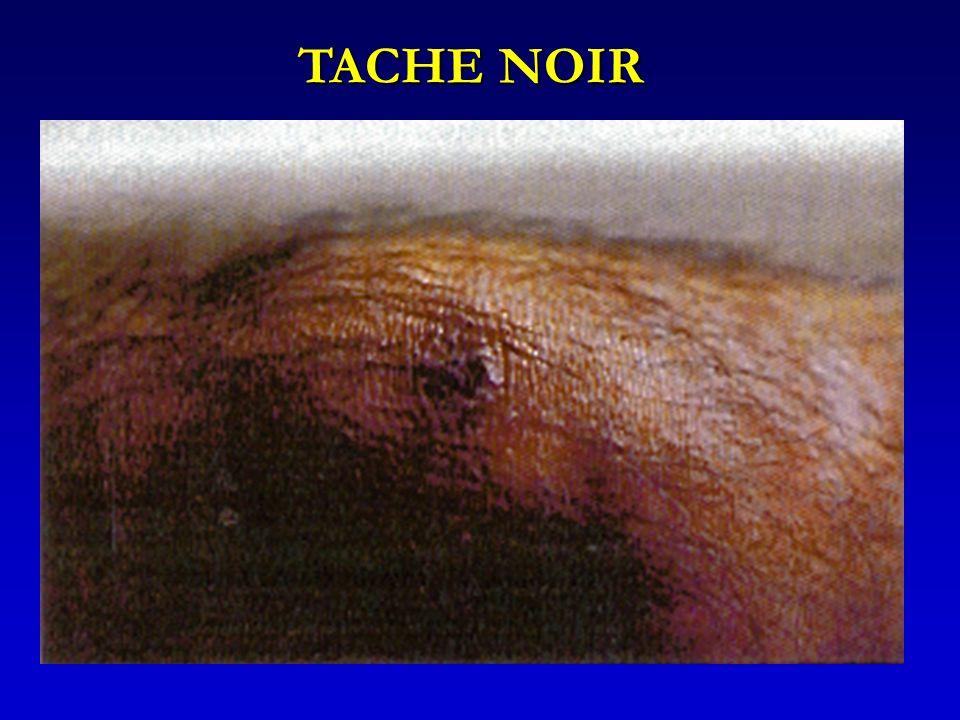 TACHE NOIR