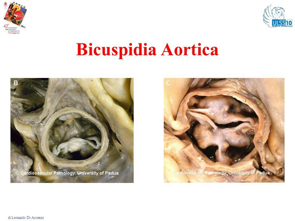 Bicuspidia aortica di Leonardo Di Ascenzo Frequenza: circa il 2 % nella popolazione.