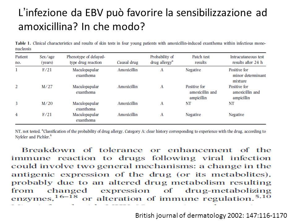 L'infezione da EBV può favorire la sensibilizzazione ad amoxicillina? In che modo? British journal of dermatology 2002: 147:116-1170