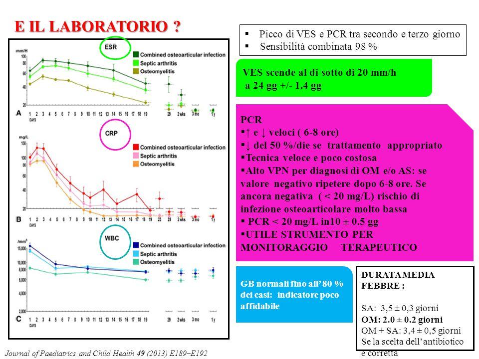  Picco di VES e PCR tra secondo e terzo giorno  Sensibilità combinata 98 % DURATA MEDIA FEBBRE : SA: 3,5 ± 0,3 giorni OM: 2.0 ± 0.2 giorni OM + SA:
