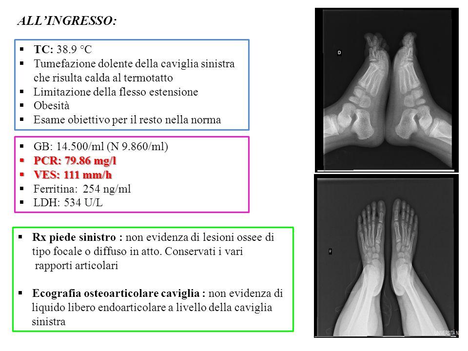  Rx piede sinistro : non evidenza di lesioni ossee di tipo focale o diffuso in atto. Conservati i vari rapporti articolari  Ecografia osteoarticolar