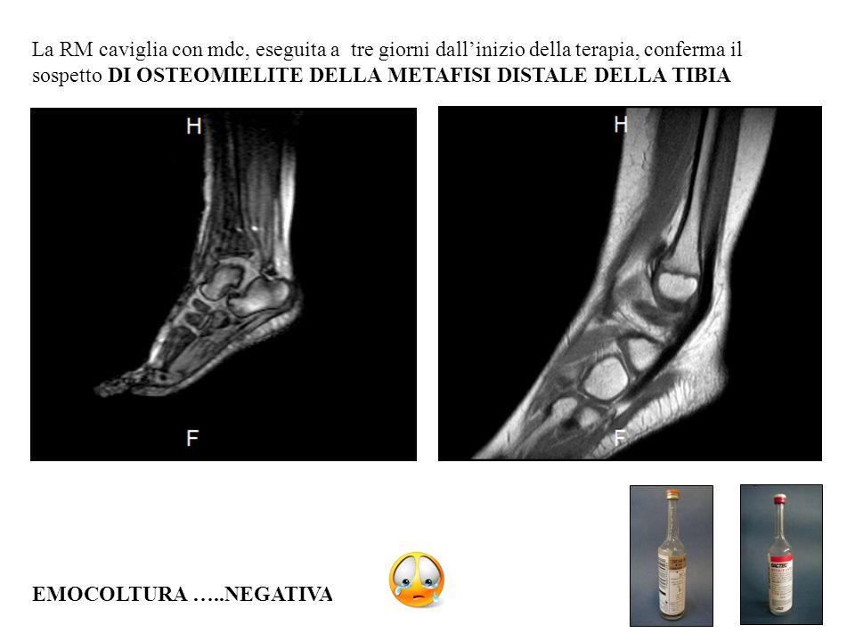 La RM caviglia con mdc, eseguita a tre giorni dall'inizio della terapia, conferma il sospetto DI OSTEOMIELITE DELLA METAFISI DISTALE DELLA TIBIA EMOCO