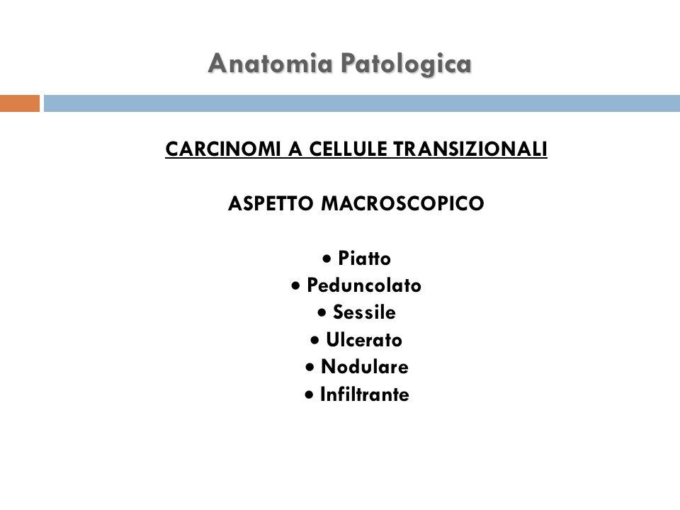 Anatomia Patologica CARCINOMI A CELLULE TRANSIZIONALI ASPETTO MACROSCOPICO  Piatto  Peduncolato  Sessile  Ulcerato  Nodulare  Infiltrante